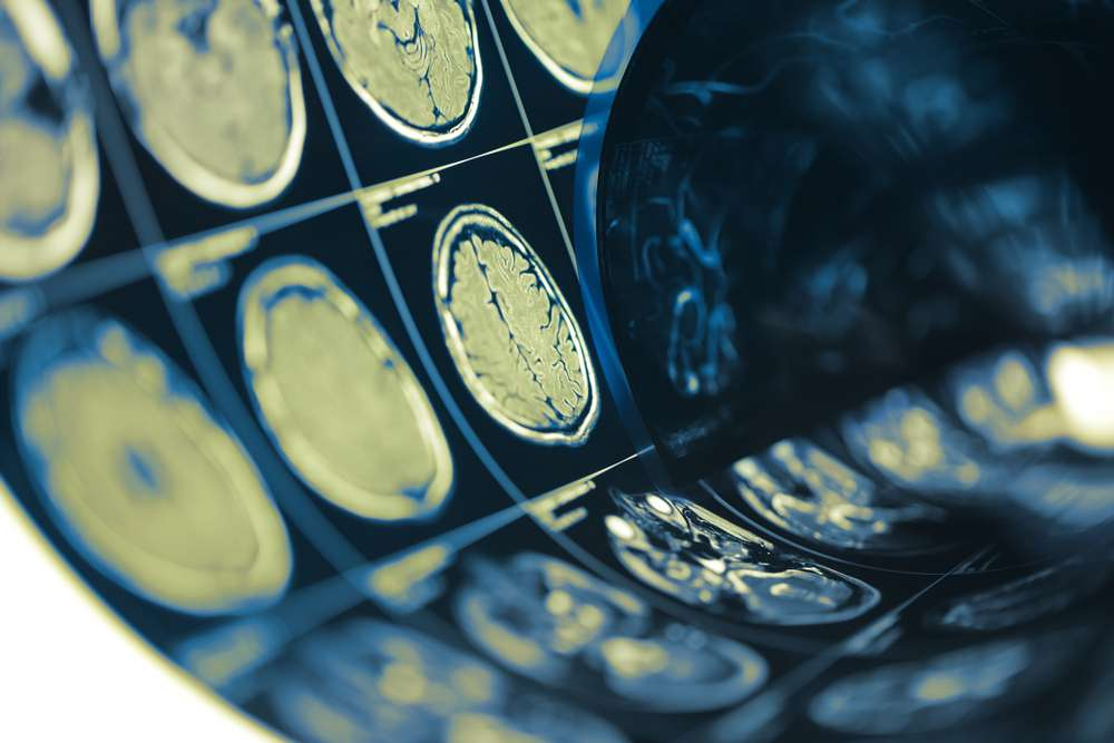 Maintain-your-brain's-health-and-function-with-regular-concussion-tests