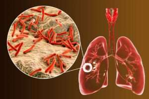 TB Test: What Positive PPD and Negative PPD Results Mean
